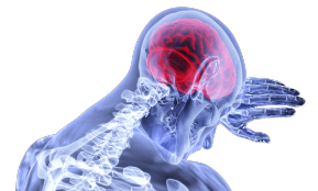 мозг (невролог)
